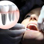 Mejorar la calidad de vida con implantes dentales