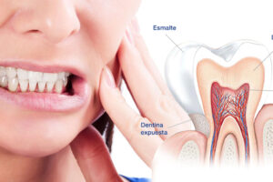 hipersensibilidad-dental-causas