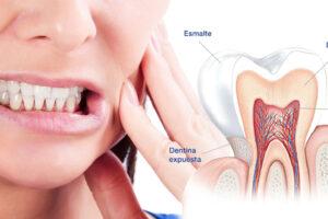 hipersensibilidad-dental-causas
