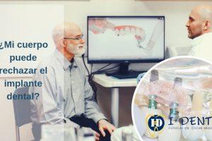 implante -dental-rechazo-dentistas-madrid-imasdent