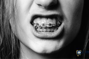 10-problemas-y-enfermedades-que-se-tratan-con-la-ortodoncia