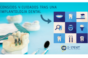 implantología-dental