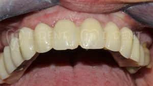 Caso de la clínica dental Imasdent